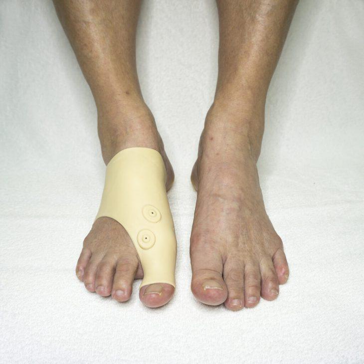 pedisil-pols-voet-brace-pedicure-groothandel-pedimed